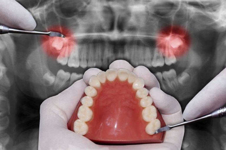 Почему удаляют зубы мудрости