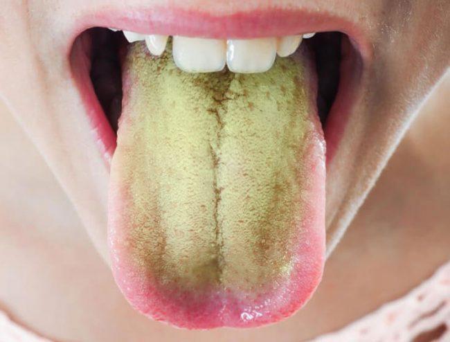 Налет на язык при циррозе
